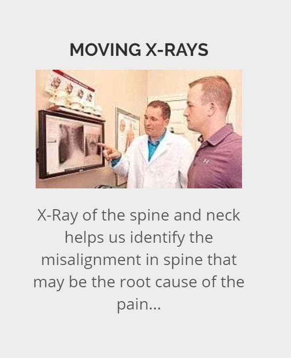 Moving X ray benefits